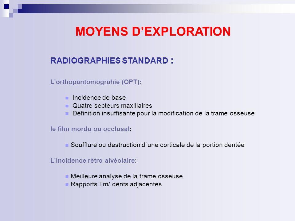 IRM: masse polylobée, mixte, solide et kystique parois épaisses, irrégulières, iso intense T1, hyper intense en T2.