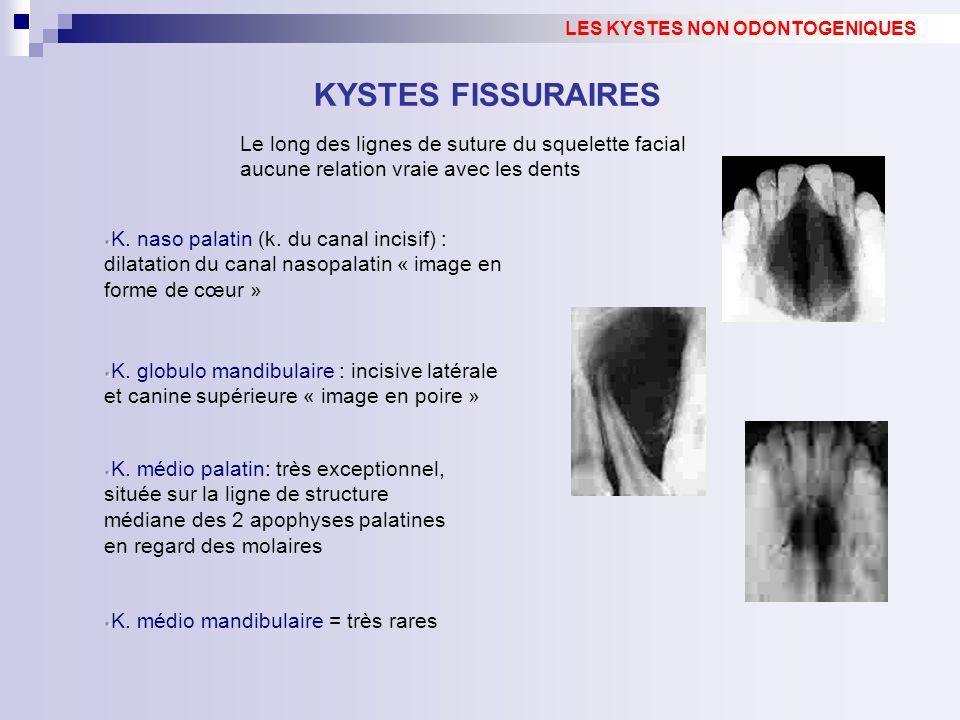 KYSTES FISSURAIRES Le long des lignes de suture du squelette facial aucune relation vraie avec les dents LES KYSTES NON ODONTOGENIQUES K. naso palatin