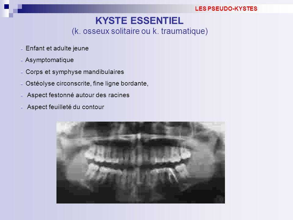 Enfant et adulte jeune Asymptomatique Corps et symphyse mandibulaires Ostéolyse circonscrite, fine ligne bordante, Aspect festonné autour des racines
