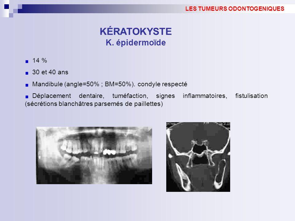 14 % 30 et 40 ans Mandibule (angle=50% ; BM=50%). condyle respecté Déplacement dentaire, tuméfaction, signes inflammatoires, fistulisation (sécrétions