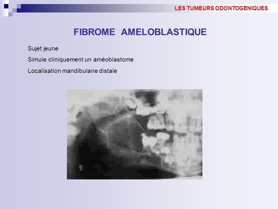Sujet jeune Simule cliniquement un améoblastome Localisation mandibulaire distale FIBROME AMELOBLASTIQUE LES TUMEURS ODONTOGENIQUES