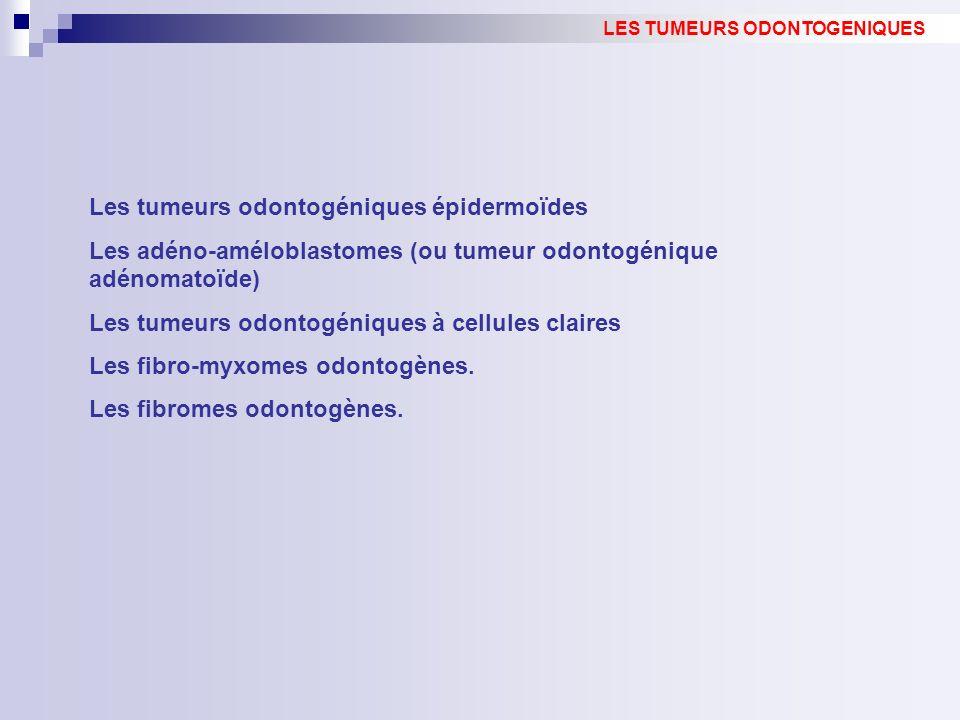 Les tumeurs odontogéniques épidermoïdes Les adéno-améloblastomes (ou tumeur odontogénique adénomatoïde) Les tumeurs odontogéniques à cellules claires Les fibro-myxomes odontogènes.