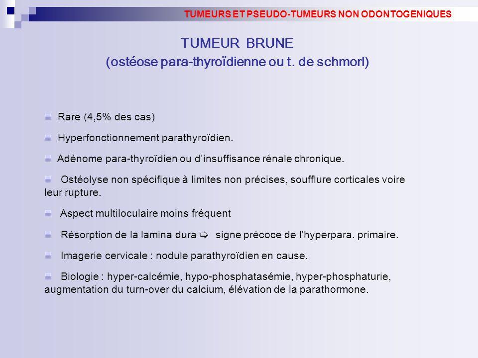 Rare (4,5% des cas) Hyperfonctionnement parathyroïdien. Adénome para-thyroïdien ou dinsuffisance rénale chronique. Ostéolyse non spécifique à limites