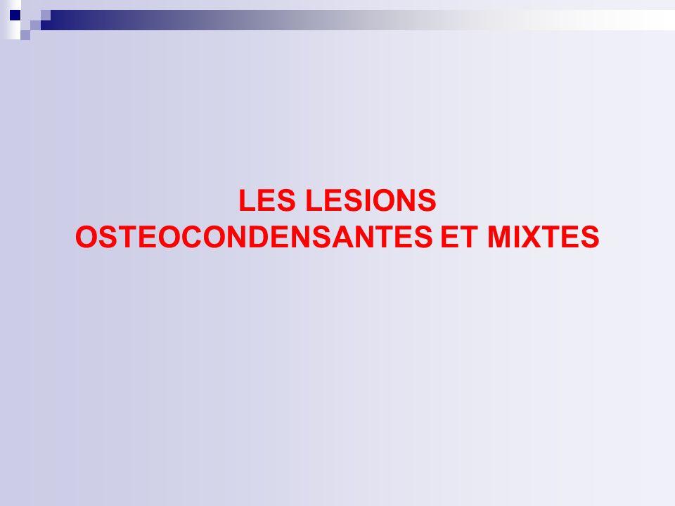 LES LESIONS OSTEOCONDENSANTES ET MIXTES