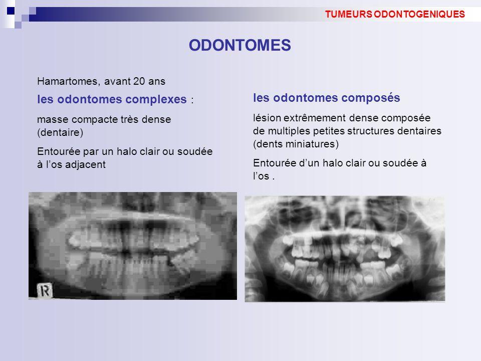 les odontomes complexes : masse compacte très dense (dentaire) Entourée par un halo clair ou soudée à los adjacent ODONTOMES TUMEURS ODONTOGENIQUES le
