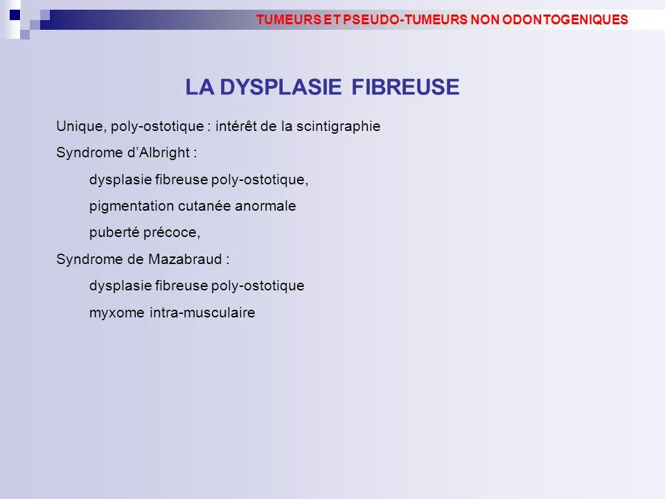 Unique, poly-ostotique : intérêt de la scintigraphie Syndrome dAlbright : dysplasie fibreuse poly-ostotique, pigmentation cutanée anormale puberté pré