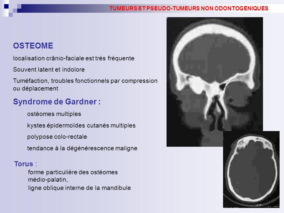 OSTEOME localisation crânio-faciale est très fréquente Souvent latent et indolore Tuméfaction, troubles fonctionnels par compression ou déplacement Sy