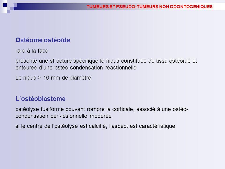 Ostéome ostéoïde rare à la face présente une structure spécifique le nidus constituée de tissu ostéoïde et entourée dune ostéo-condensation réactionnelle Le nidus > 10 mm de diamètre Lostéoblastome ostéolyse fusiforme pouvant rompre la corticale, associé à une ostéo- condensation péri-lésionnelle modérée si le centre de lostéolyse est calcifié, laspect est caractéristique TUMEURS ET PSEUDO-TUMEURS NON ODONTOGENIQUES