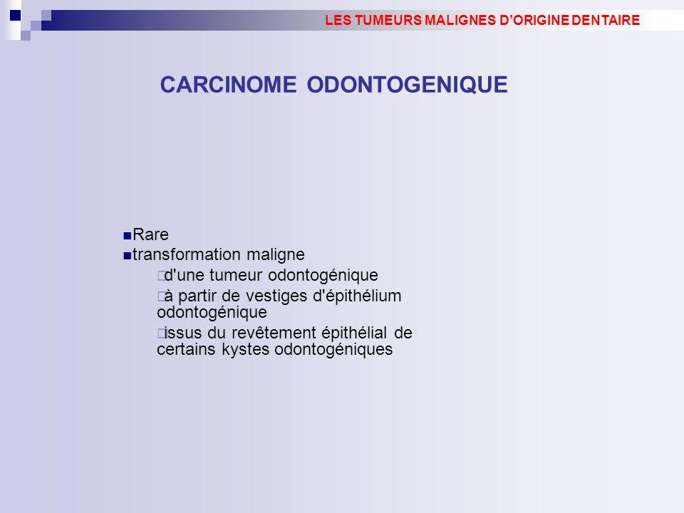CARCINOME ODONTOGENIQUE LES TUMEURS MALIGNES DORIGINE DENTAIRE Rare transformation maligne d'une tumeur odontogénique à partir de vestiges d'épithéliu