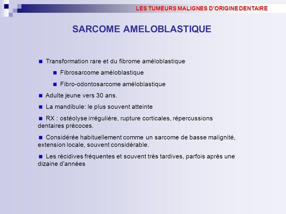 SARCOME AMELOBLASTIQUE Transformation rare et du fibrome améloblastique Fibrosarcome améloblastique Fibro-odontosarcome améloblastique Adulte jeune vers 30 ans.