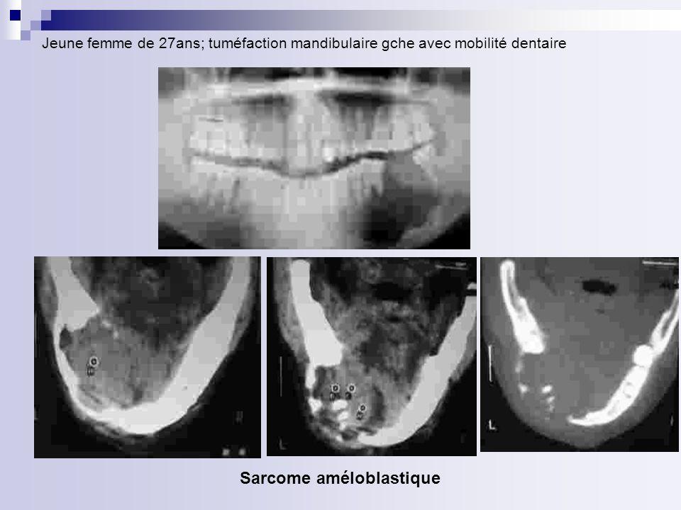 Jeune femme de 27ans; tuméfaction mandibulaire gche avec mobilité dentaire Sarcome améloblastique