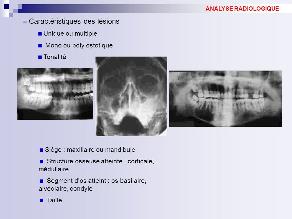 Caractéristiques des lésions Unique ou multiple Mono ou poly ostotique Tonalité ANALYSE RADIOLOGIQUE Siège : maxillaire ou mandibule Structure osseuse