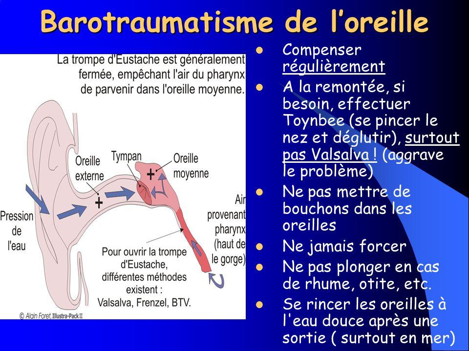 Barotraumatisme de loreille Symptômes Déformation du tympan d où gêne (ne pas attendre ni forcer sur les manœuvre déquilibration...) Fissure du tympan : douleur vive, crépitement dans les oreilles, froid, vertiges, pertes de léquilibre Déchirement du tympan : douleur telle que la syncope survient dans 90 % des cas Saignements