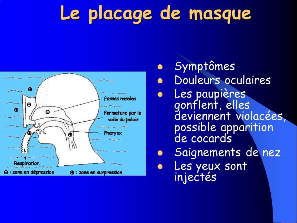 Le placage de masque Cause Il est dû aux variations de pression du volume d air contenu dans le masque.