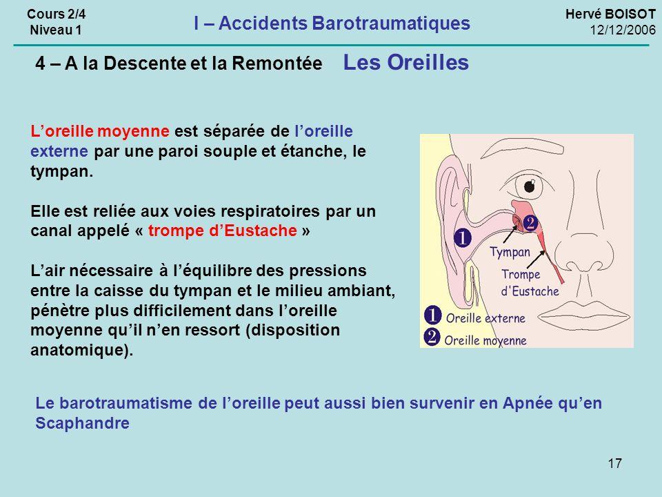 17 Hervé BOISOT 12/12/2006 Cours 2/4 Niveau 1 I – Accidents Barotraumatiques Les Oreilles 4 – A la Descente et la Remontée Loreille moyenne est séparée de loreille externe par une paroi souple et étanche, le tympan.