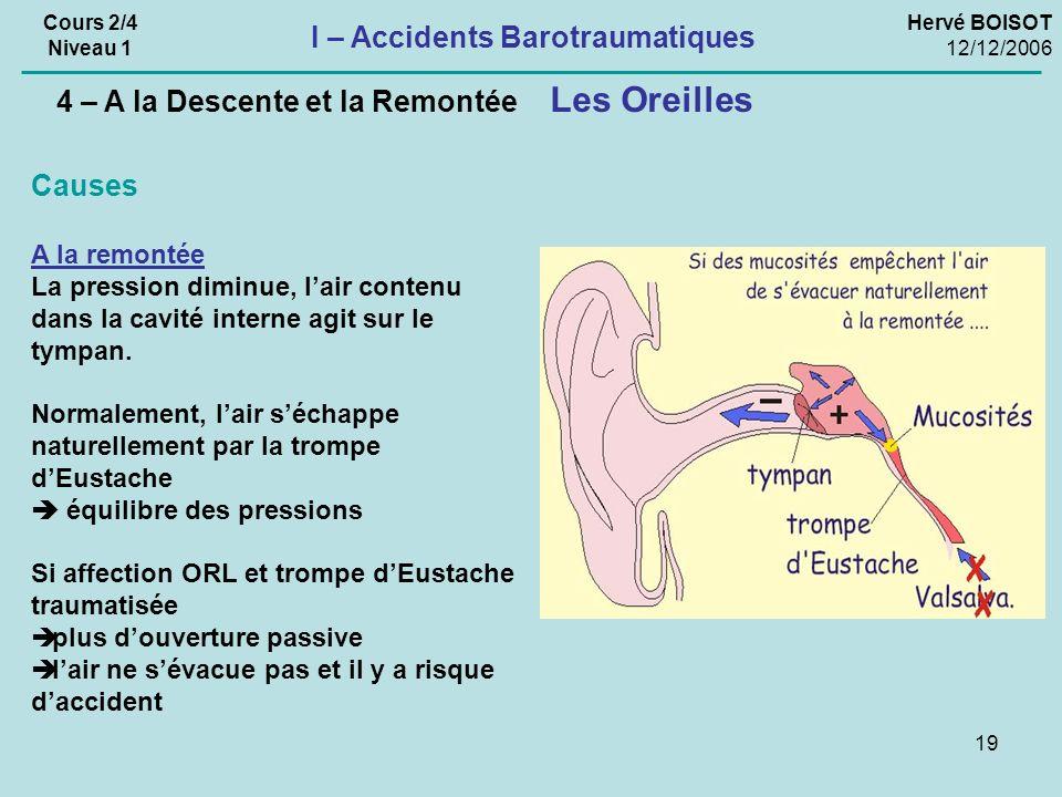 19 Hervé BOISOT 12/12/2006 Cours 2/4 Niveau 1 Causes A la remontée La pression diminue, lair contenu dans la cavité interne agit sur le tympan.