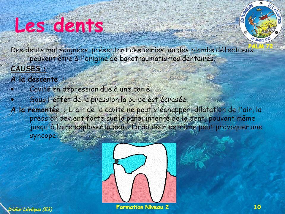PALM 72 Didier Lévêque (E3) Formation Niveau 210 Les dents Des dents mal soignées, présentant des caries, ou des plombs défectueux peuvent être à l origine de barotraumatismes dentaires.