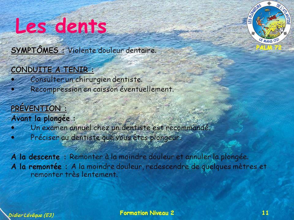 PALM 72 Didier Lévêque (E3) Formation Niveau 211 Les dents SYMPTÔMES : SYMPTÔMES : Violente douleur dentaire. CONDUITE A TENIR : Consulter un chirurgi
