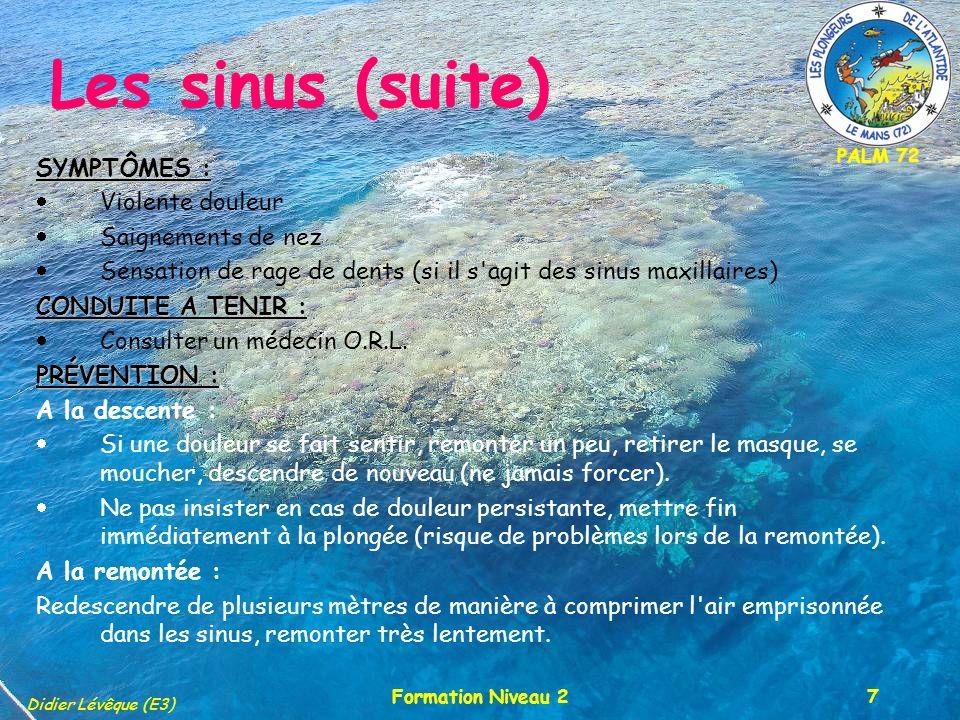 PALM 72 Didier Lévêque (E3) Formation Niveau 27 Les sinus (suite) SYMPTÔMES : Violente douleur Saignements de nez Sensation de rage de dents (si il s agit des sinus maxillaires) CONDUITE A TENIR : Consulter un médecin O.R.L.