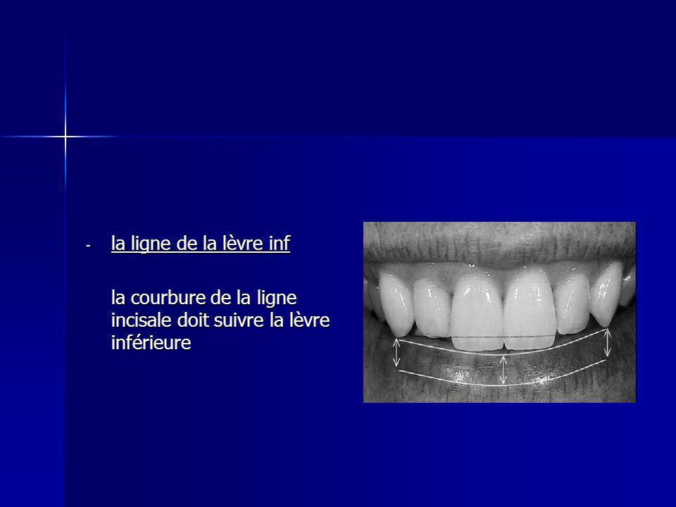 - la ligne de la lèvre inf la courbure de la ligne incisale doit suivre la lèvre inférieure