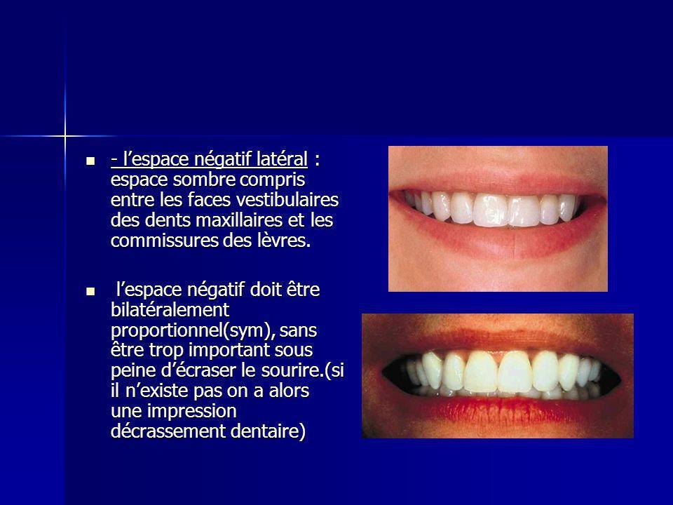 - lespace négatif latéral : espace sombre compris entre les faces vestibulaires des dents maxillaires et les commissures des lèvres.