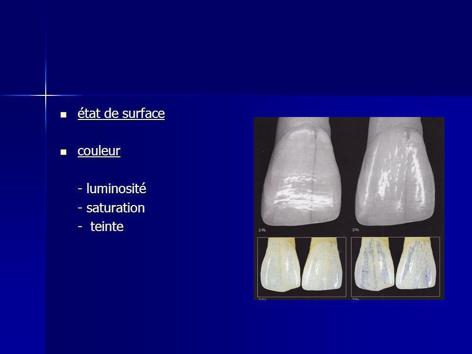 état de surface état de surface couleur couleur - luminosité - saturation - teinte