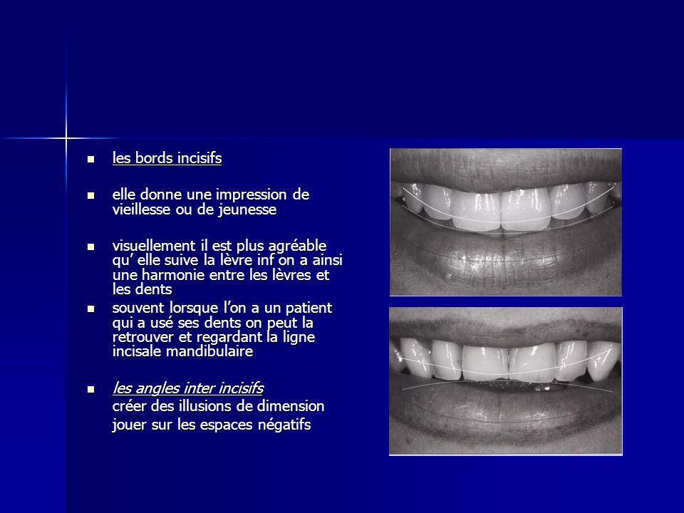 les bords incisifs les bords incisifs elle donne une impression de vieillesse ou de jeunesse elle donne une impression de vieillesse ou de jeunesse visuellement il est plus agréable qu elle suive la lèvre inf on a ainsi une harmonie entre les lèvres et les dents visuellement il est plus agréable qu elle suive la lèvre inf on a ainsi une harmonie entre les lèvres et les dents souvent lorsque lon a un patient qui a usé ses dents on peut la retrouver et regardant la ligne incisale mandibulaire souvent lorsque lon a un patient qui a usé ses dents on peut la retrouver et regardant la ligne incisale mandibulaire les angles inter incisifs les angles inter incisifs créer des illusions de dimension jouer sur les espaces négatifs