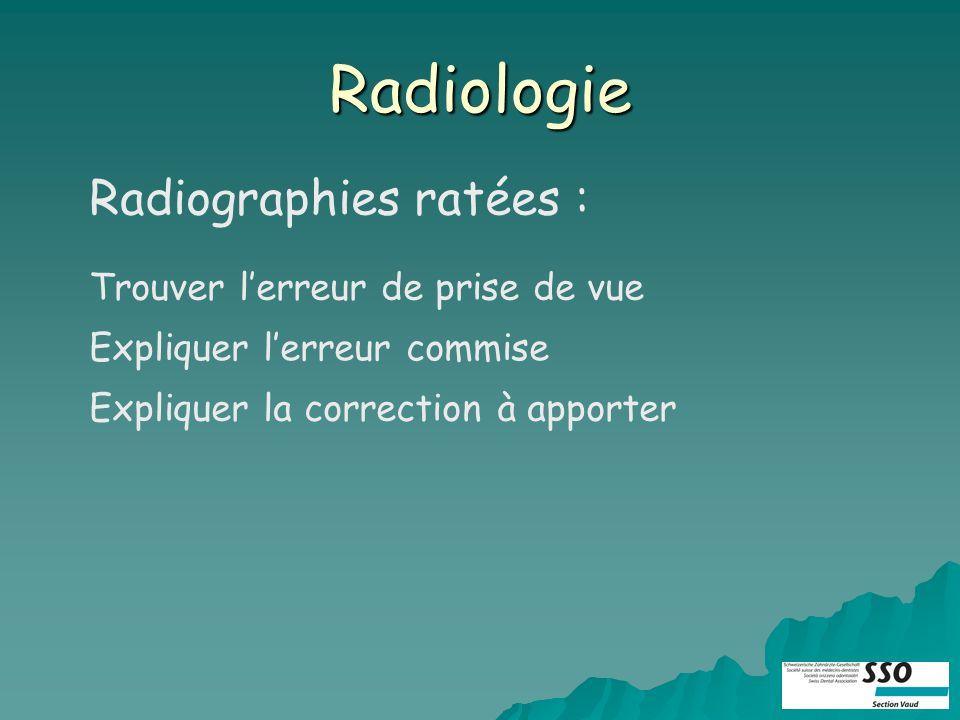 Radiologie Radiographies ratées : Trouver lerreur de prise de vue Expliquer lerreur commise Expliquer la correction à apporter