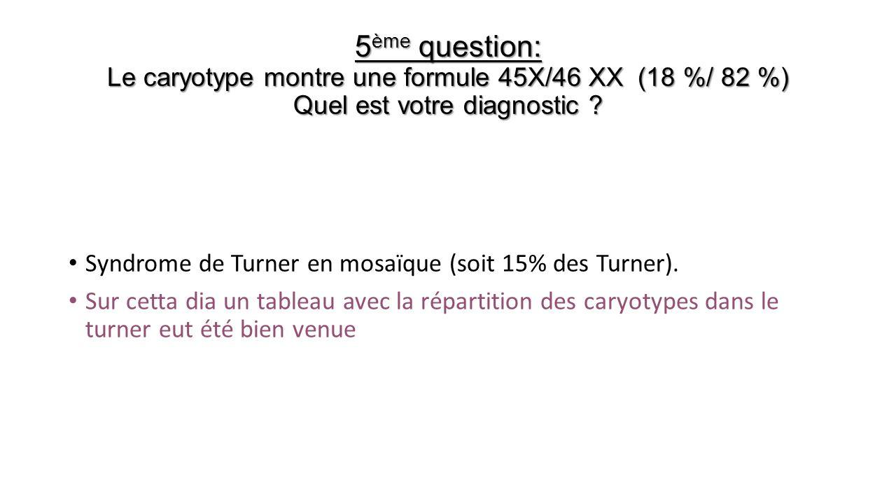 5 ème question: Le caryotype montre une formule 45X/46 XX (18 %/ 82 %) Quel est votre diagnostic ? Syndrome de Turner en mosaïque (soit 15% des Turner