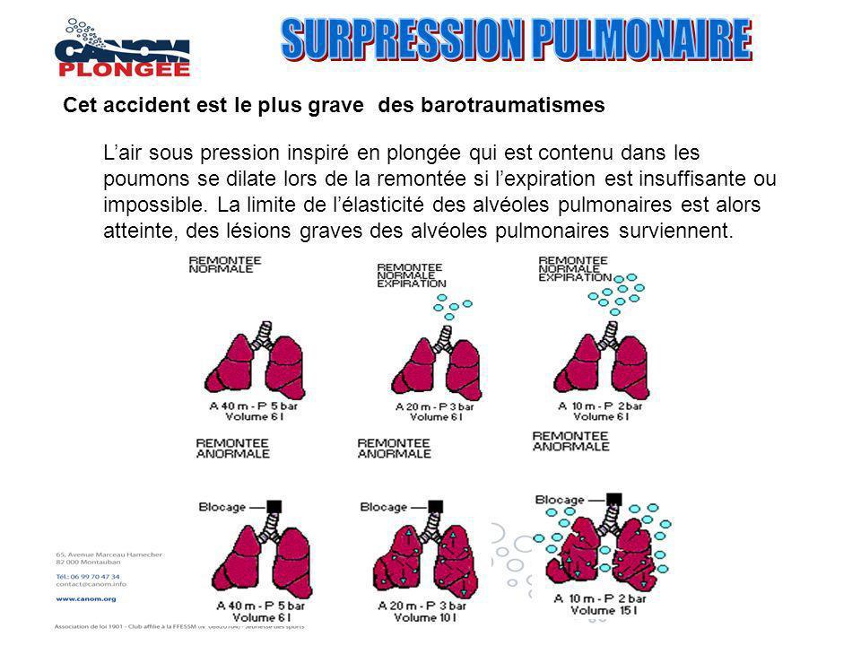 Cet accident est le plus grave des barotraumatismes Lair sous pression inspiré en plongée qui est contenu dans les poumons se dilate lors de la remont