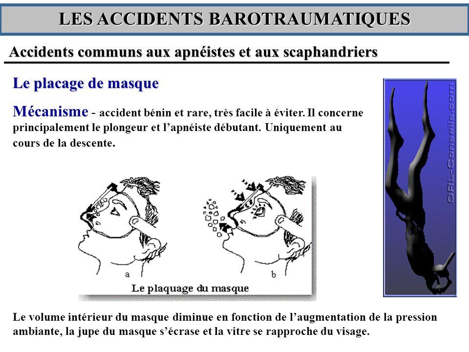 Le placage de masque Mécanisme - accident bénin et rare, très facile à éviter.