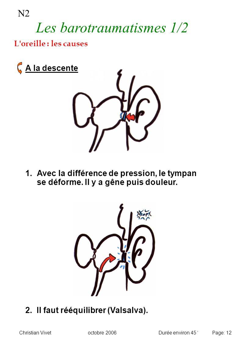 N2 Les barotraumatismes 1/2 L'oreille : les causes A la descente 1. Avec la différence de pression, le tympan se déforme. Il y a gêne puis douleur. 2.