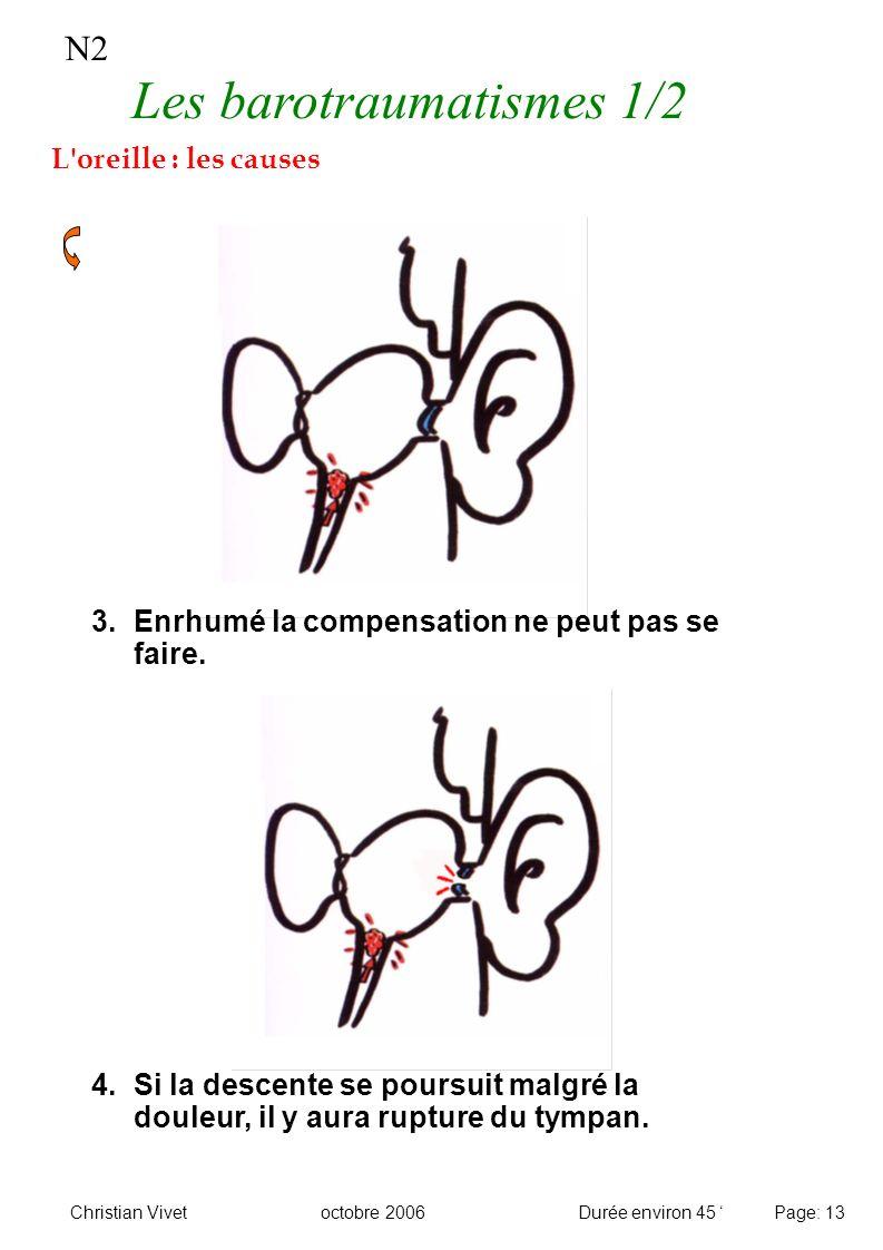 N2 Les barotraumatismes 1/2 L'oreille : les causes 3.Enrhumé la compensation ne peut pas se faire. 4.Si la descente se poursuit malgré la douleur, il