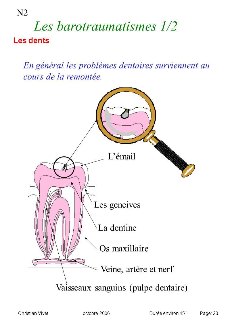 N2 Les barotraumatismes 1/2 Les dents Lémail La dentine Veine, artère et nerf Les gencives Os maxillaire Vaisseaux sanguins (pulpe dentaire) En généra