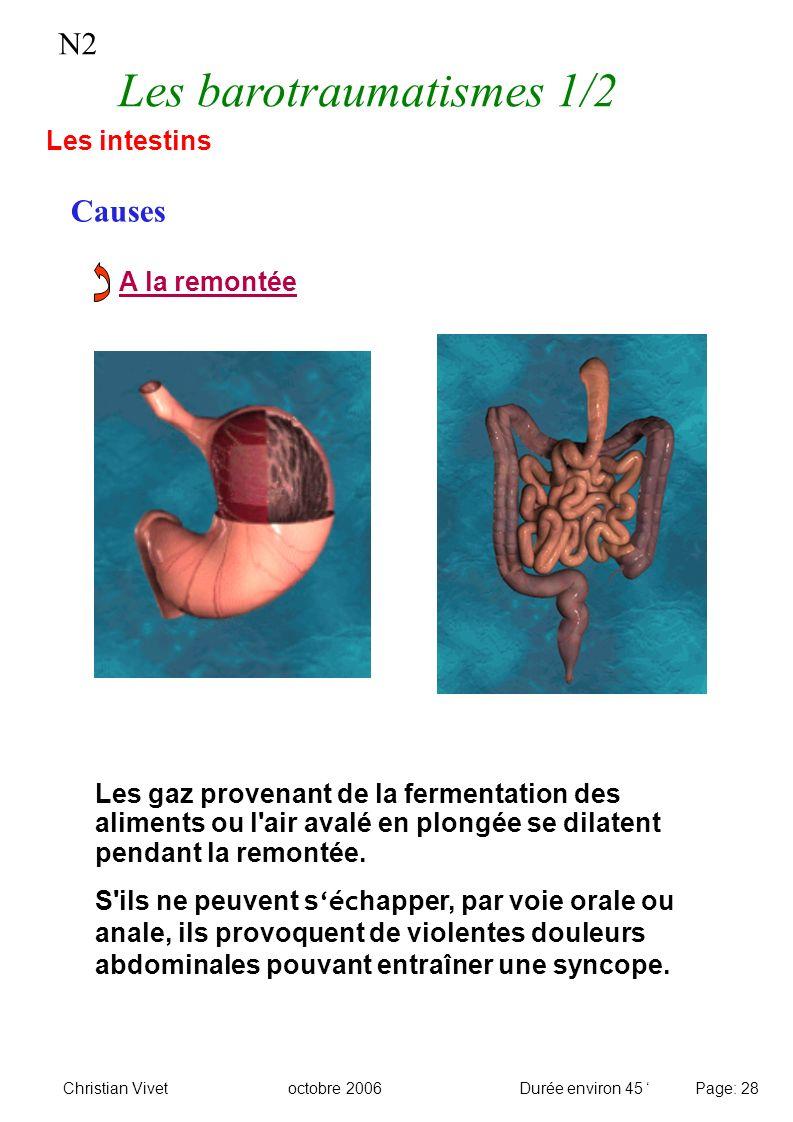 N2 Les barotraumatismes 1/2 Causes Les intestins A la remontée Les gaz provenant de la fermentation des aliments ou l'air avalé en plongée se dilatent