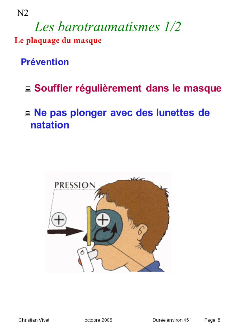 N2 Les barotraumatismes 1/2 Le plaquage du masque Prévention Souffler régulièrement dans le masque Ne pas plonger avec des lunettes de natation Christ