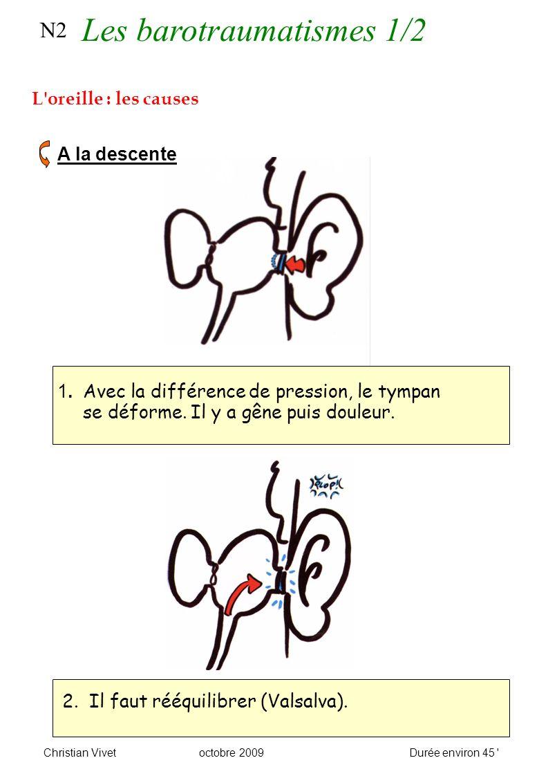 N2 L oreille : les causes A la descente 1. Avec la différence de pression, le tympan se déforme.