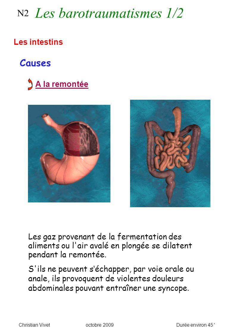 N2 Causes Les intestins A la remontée Les gaz provenant de la fermentation des aliments ou l air avalé en plongée se dilatent pendant la remontée.