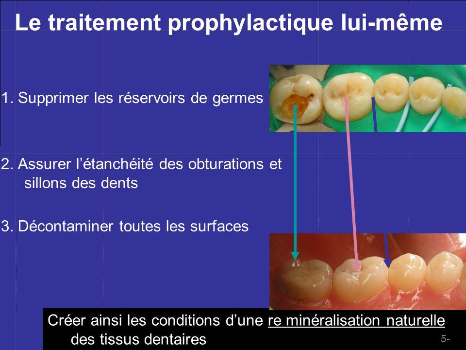 Mblique ©201à Le traitement prophylactique lui-même 2. Assurer létanchéité des obturations et sillons des dents 3. Décontaminer toutes les surfaces 1.