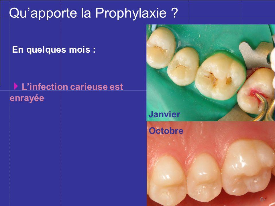 Mblique ©201à Quapporte la Prophylaxie ? En quelques mois : Janvier Octobre Linfection carieuse est enrayée 6-