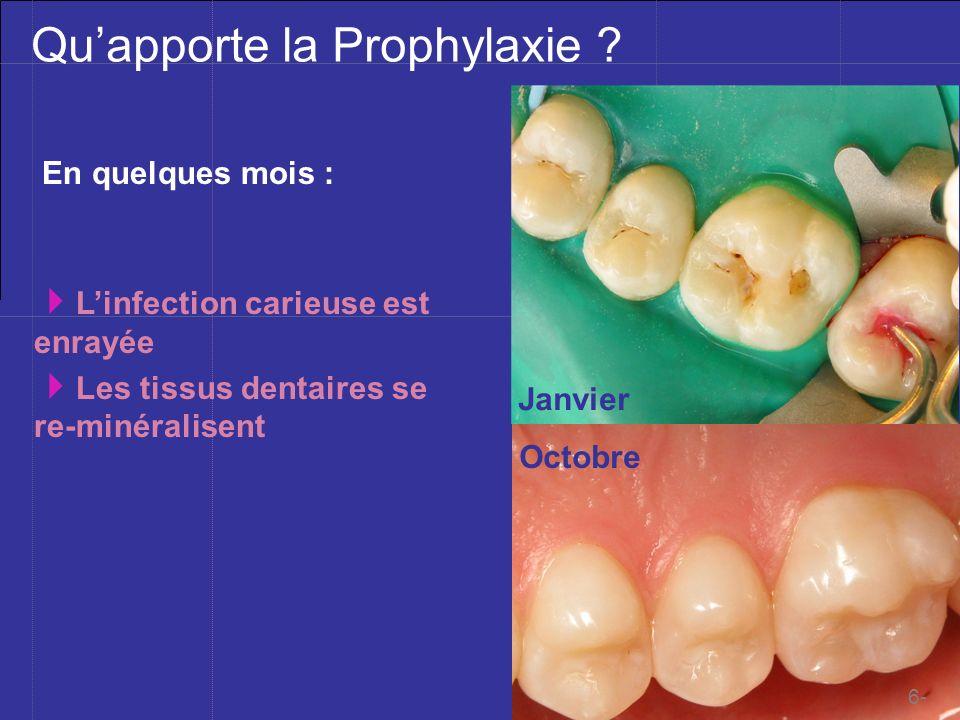 Mblique ©201à Quapporte la Prophylaxie ? En quelques mois : Janvier Octobre Linfection carieuse est enrayée Les tissus dentaires se re-minéralisent 6-