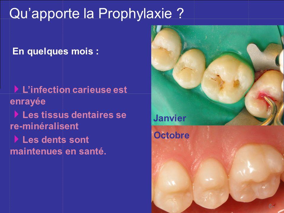 Mblique ©201à Quapporte la Prophylaxie ? En quelques mois : Janvier Octobre Linfection carieuse est enrayée Les tissus dentaires se re-minéralisent Le
