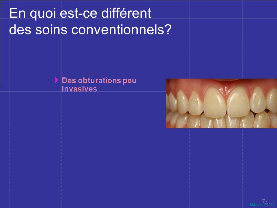 Mblique ©201à En quoi est-ce différent des soins conventionnels? Des obturations peu invasives 7-