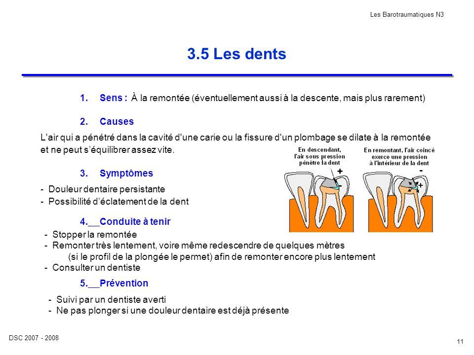 DSC 2007 - 2008 Les Barotraumatiques N3 11 3.5 Les dents 1.Sens : 2.Causes 3.Symptômes 4.Conduite à tenir 5.Prévention À la remontée (éventuellement a