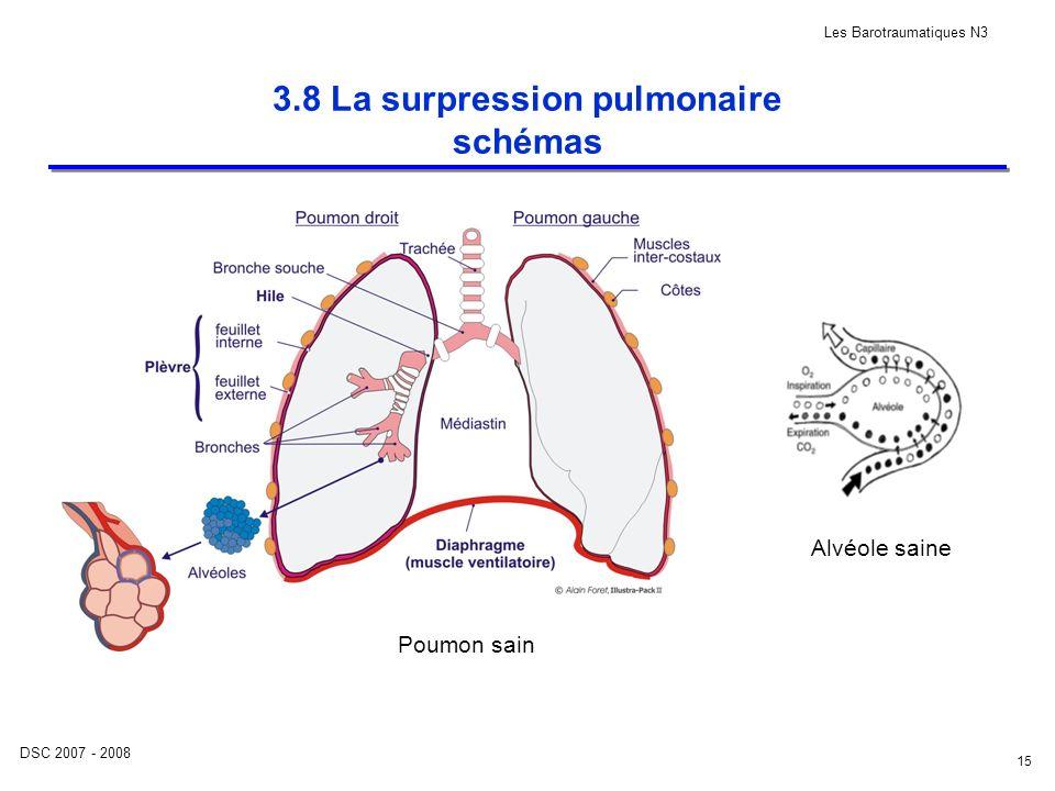 DSC 2007 - 2008 Les Barotraumatiques N3 15 3.8 La surpression pulmonaire schémas Alvéole saine Poumon sain