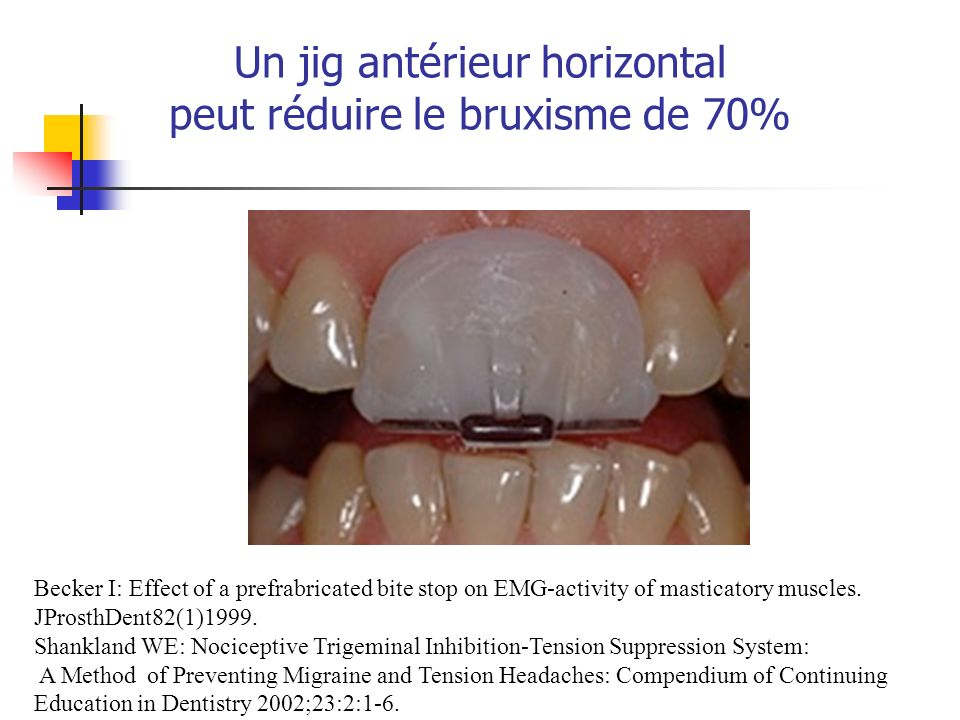 Un jig antérieur horizontal peut réduire le bruxisme de 70% Becker I: Effect of a prefrabricated bite stop on EMG-activity of masticatory muscles. JPr