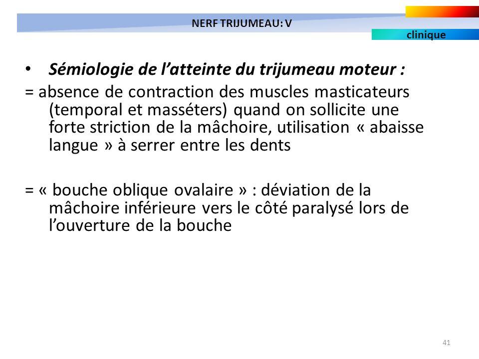 41 Sémiologie de latteinte du trijumeau moteur : = absence de contraction des muscles masticateurs (temporal et masséters) quand on sollicite une fort
