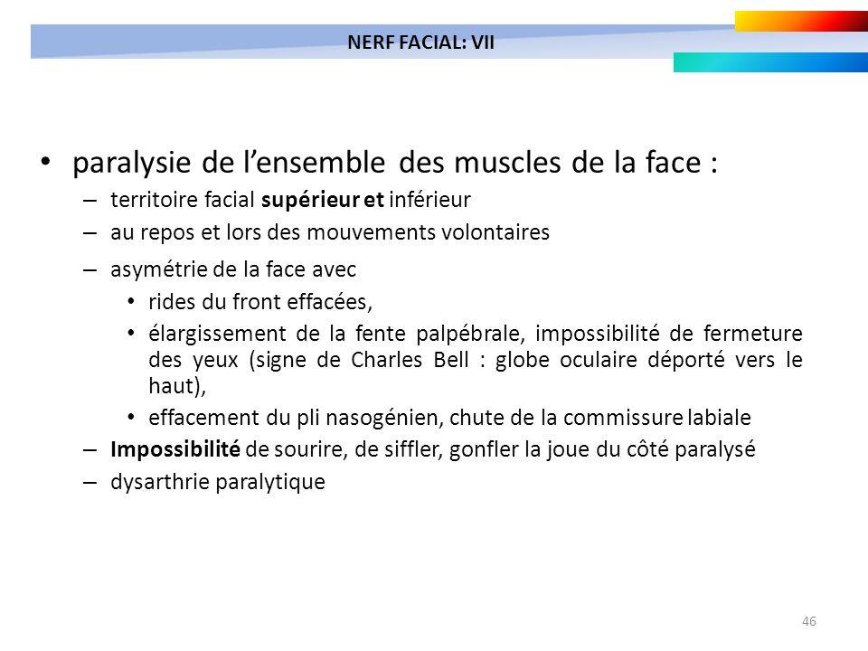 46 paralysie de lensemble des muscles de la face : – territoire facial supérieur et inférieur – au repos et lors des mouvements volontaires – asymétri