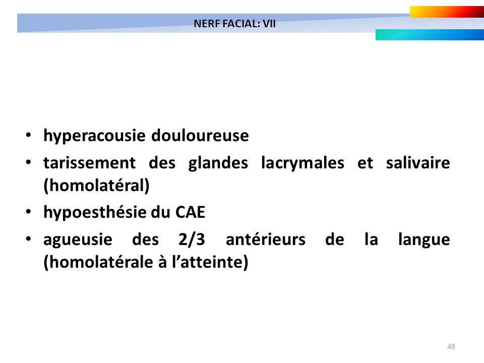 49 hyperacousie douloureuse tarissement des glandes lacrymales et salivaire (homolatéral) hypoesthésie du CAE agueusie des 2/3 antérieurs de la langue