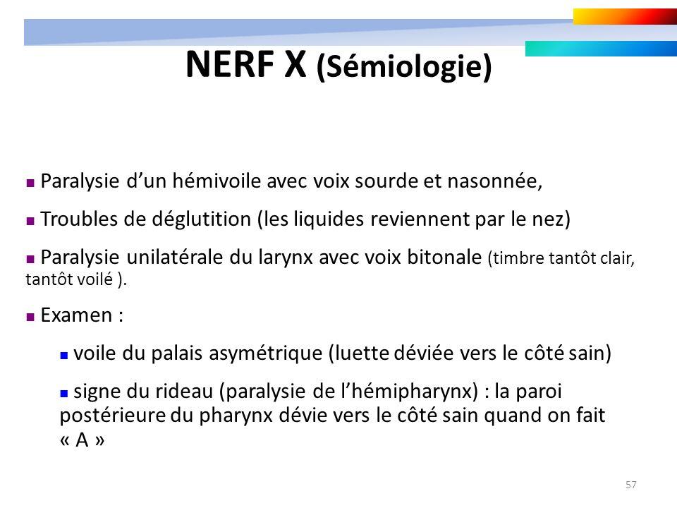 57 Paralysie dun hémivoile avec voix sourde et nasonnée, Troubles de déglutition (les liquides reviennent par le nez) Paralysie unilatérale du larynx